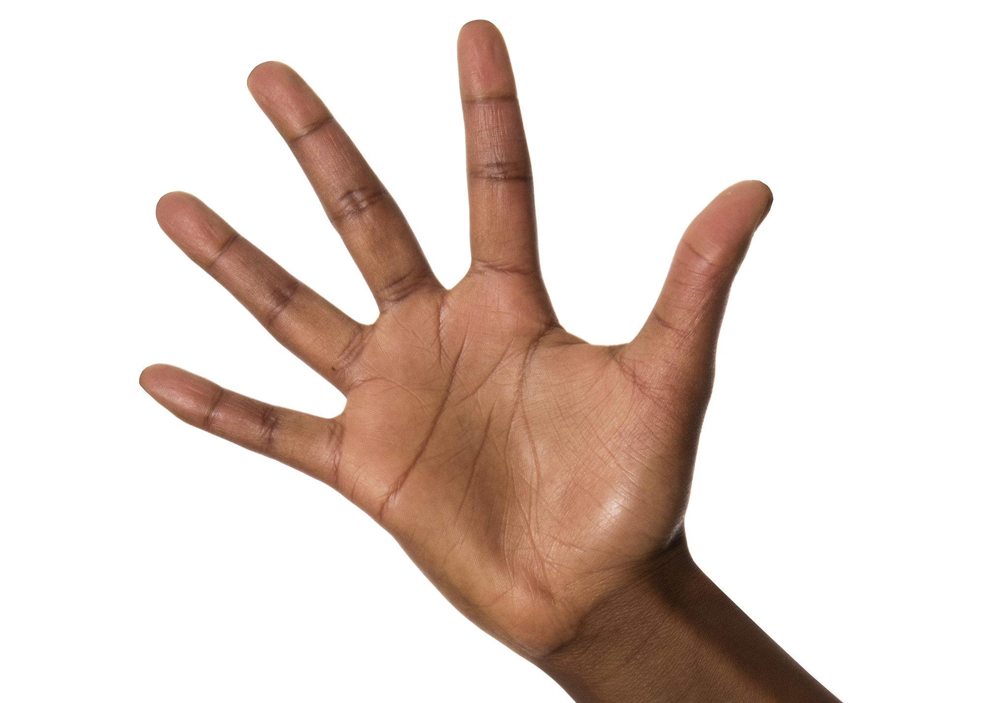 What does it mean when you have itchy palms?